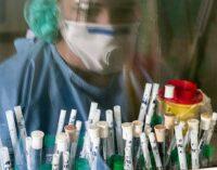 На Херсонщині за добу COVID-19 виявили у 209 осіб